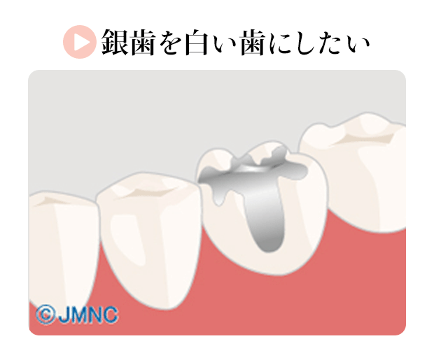 銀歯を白い歯にしたい