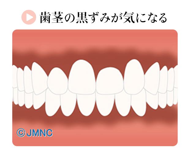 歯茎の黒ずみが気になる