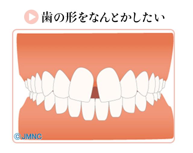 歯の形をなんとかしたい