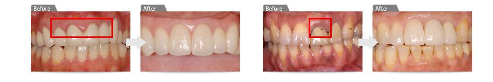 歯肉の外科的処置により、歯肉を理想の形に整えます。