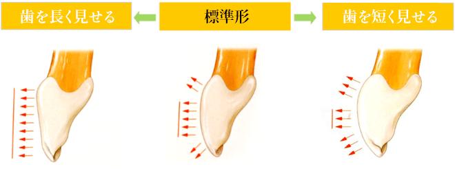 歯を長く見せる