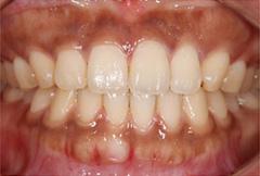 歯茎(歯肉)の黒ずみ