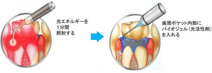 PDT(フォトダイナミックセラピー)