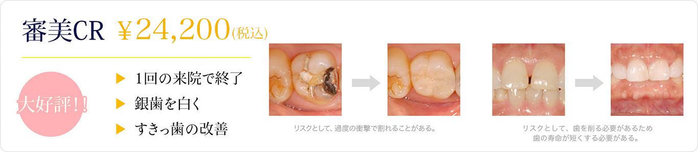 審美CR ¥18,000~1回の来院で終了 銀歯を白く すきっ歯の改善