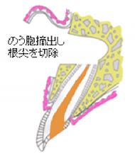 歯根端切除術 図