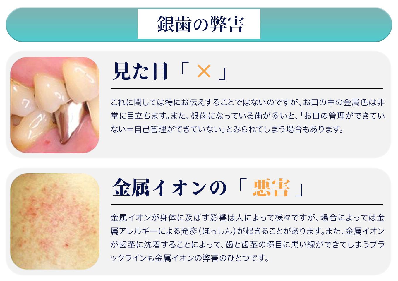 銀歯の弊害